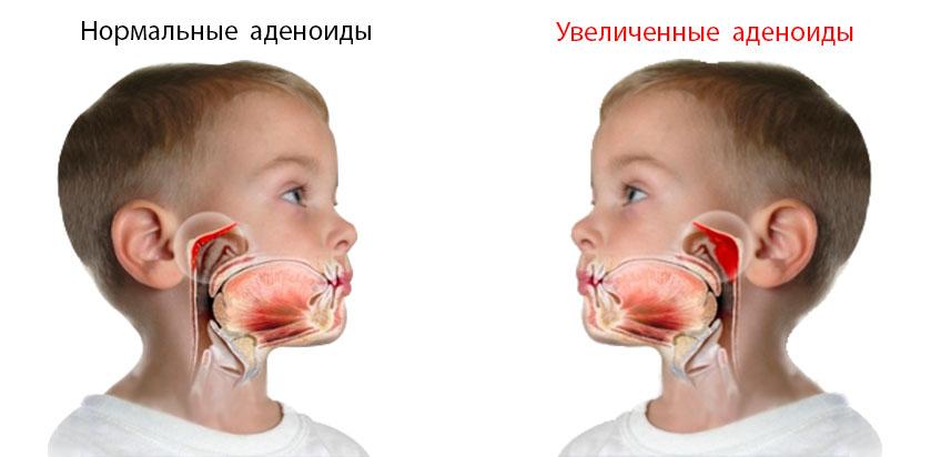 adenoidy b - Здоровый иммунитет