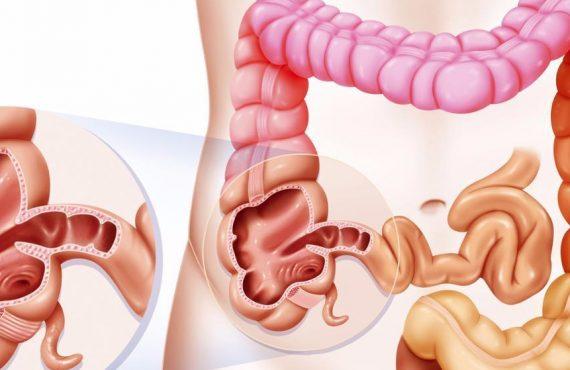 original 570x370 - Синдром дырявого кишечника: причины и лечение