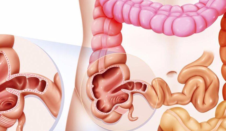 original 861x500 - Синдром дырявого кишечника: причины и лечение