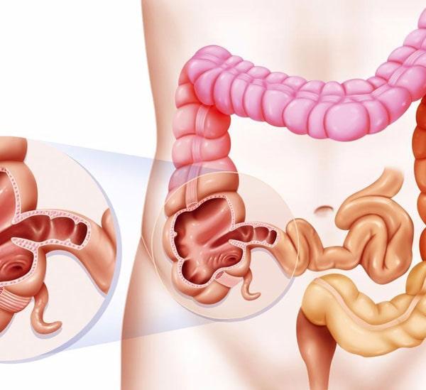original - Синдром дырявого кишечника: причины и лечение