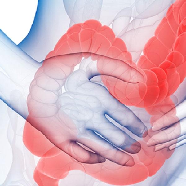 sindrom razdrazhennogo kishechnika 1024x1024 - Синдром дырявого кишечника: причины и лечение