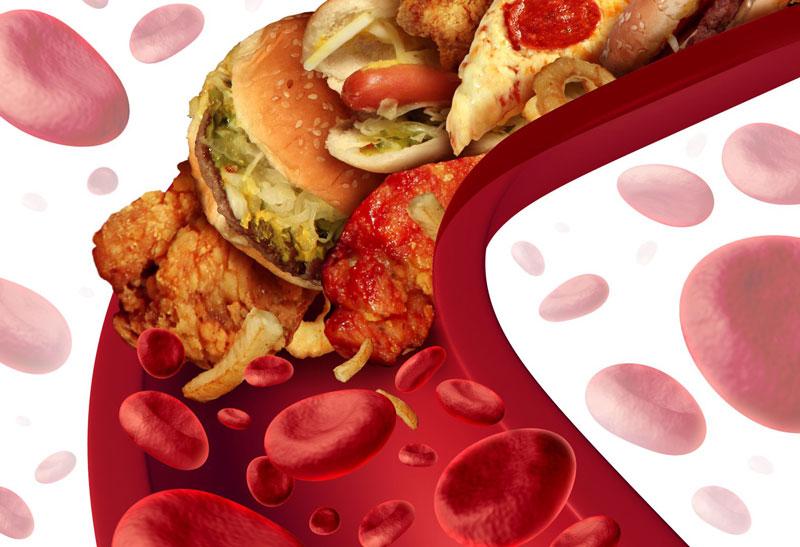 Высокий холестерин: как распознать, найти причину и устранить проблему?